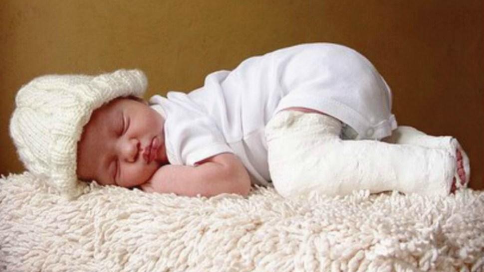 Baby in Ponseti Method casts