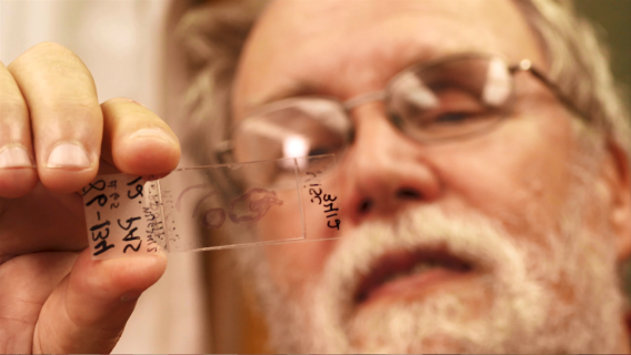 Dr. Richard Dubielzig of the Comparative Ocular Pathology Lab of Wisconsin looks at a slide of eye tissue