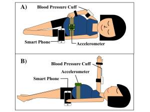 Diagram of how the Purdue UNiversity device and app for detecting preeclampsia works with a blood pressure cuff