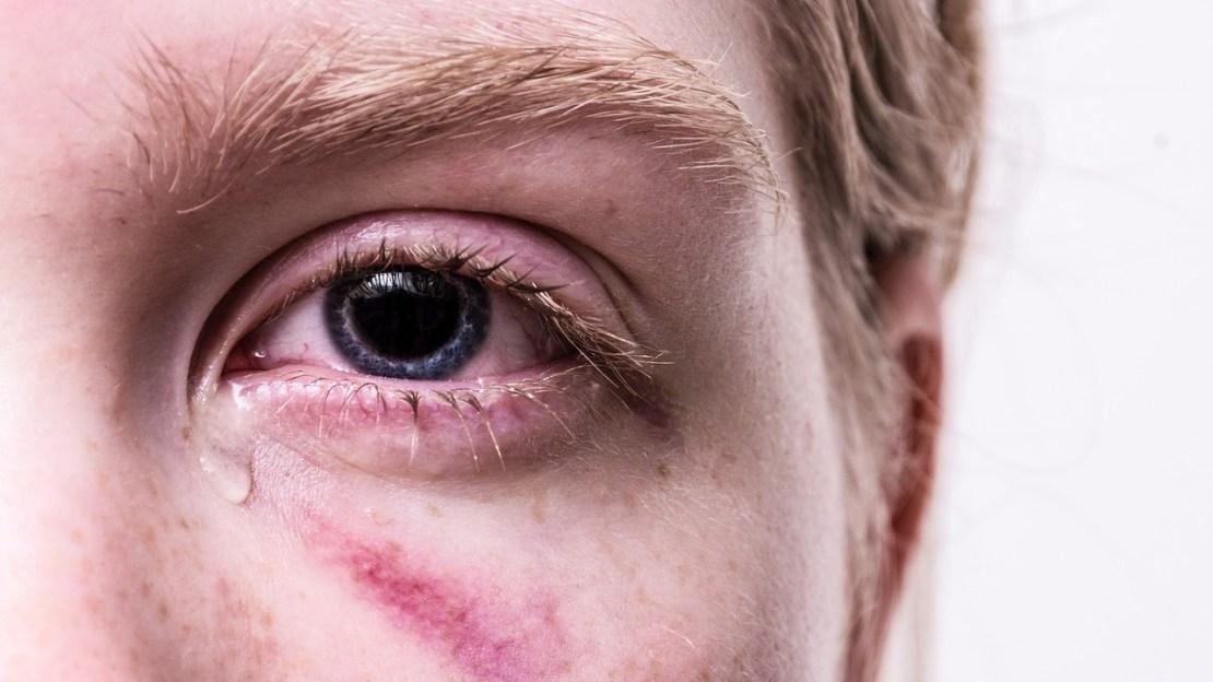 An injured and tearing eye.